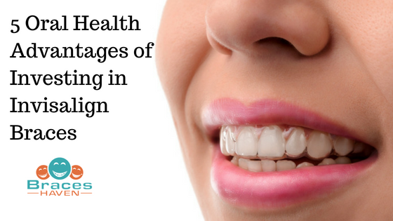 5 Oral Health Advantages of Investing in Invisalign Braces