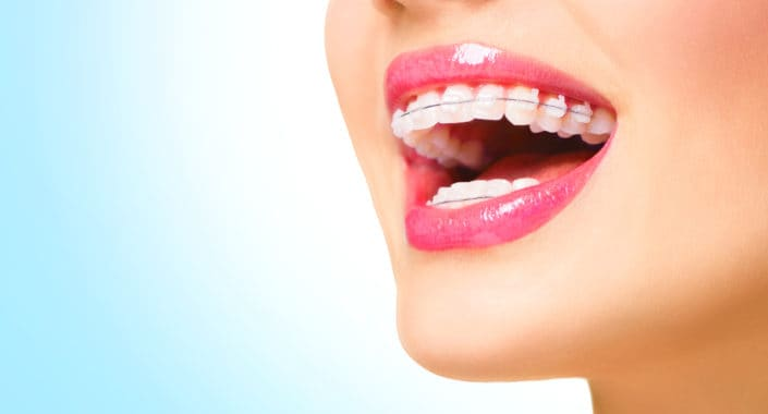 Barrhaven, Ottawa woman smiling with ceramic braces