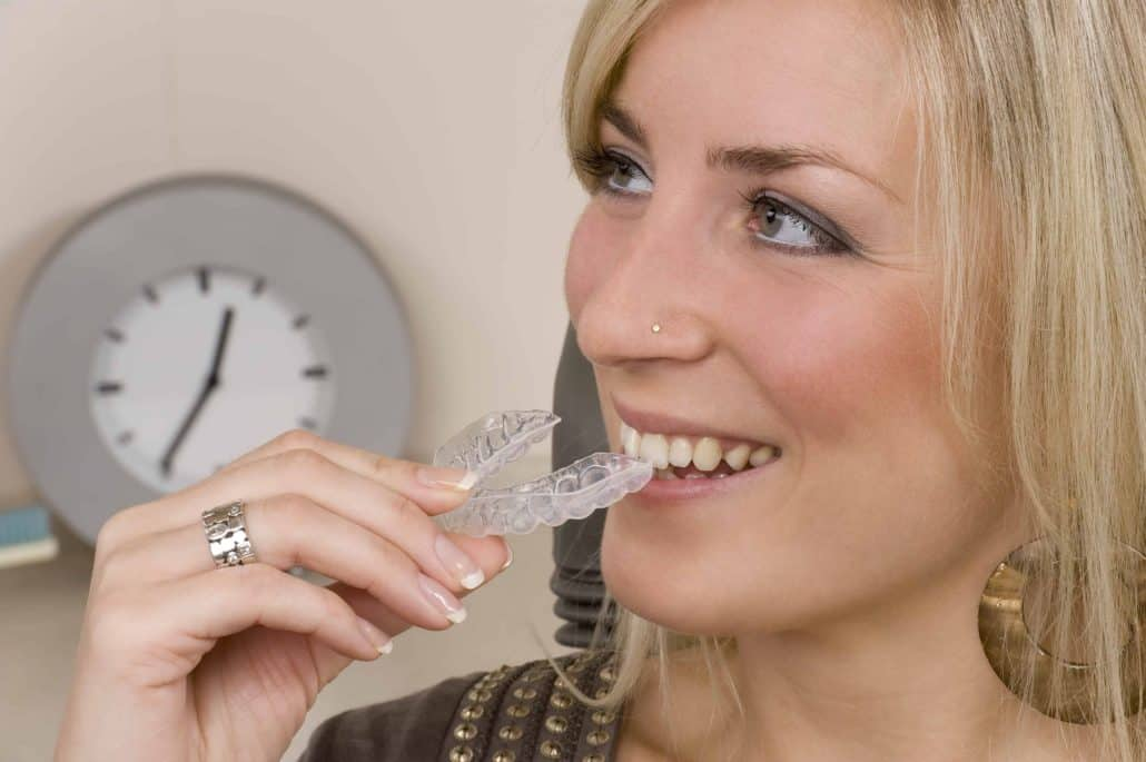 different types of braces - clear aligners invisalign braces