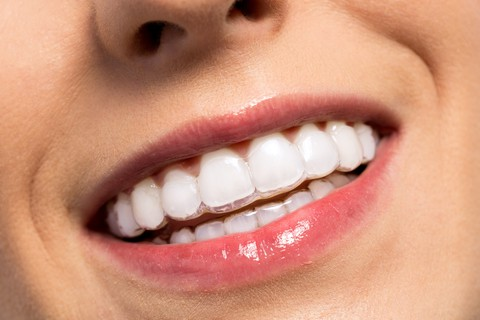 smiling woman wearing invisalign clear aligners