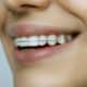 Smiling Girl Wearing Removable Vivera Retainer for Teeth