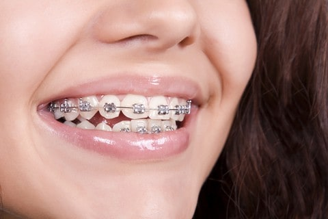Invisaling vs Braces Girl Wearing Traditional Metal Braces