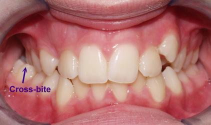 cross-bite example