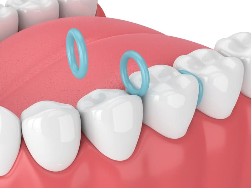 3D rendering of orthodontic teeth spacers aka separators