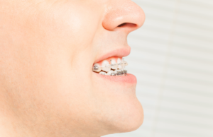 man with braces